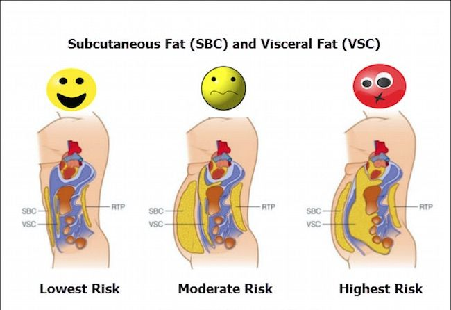 How to Reduce Visceral Fat