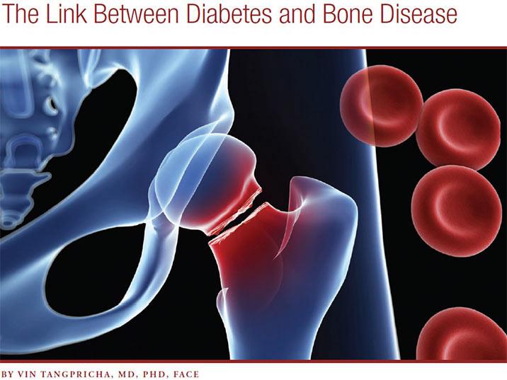 افراد دیابتی و پیش دیابتی و تمرینات قدرتی